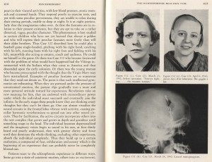 Pages from Walter Freeman's Psychosurgery in the Treatment of Mental Disorders