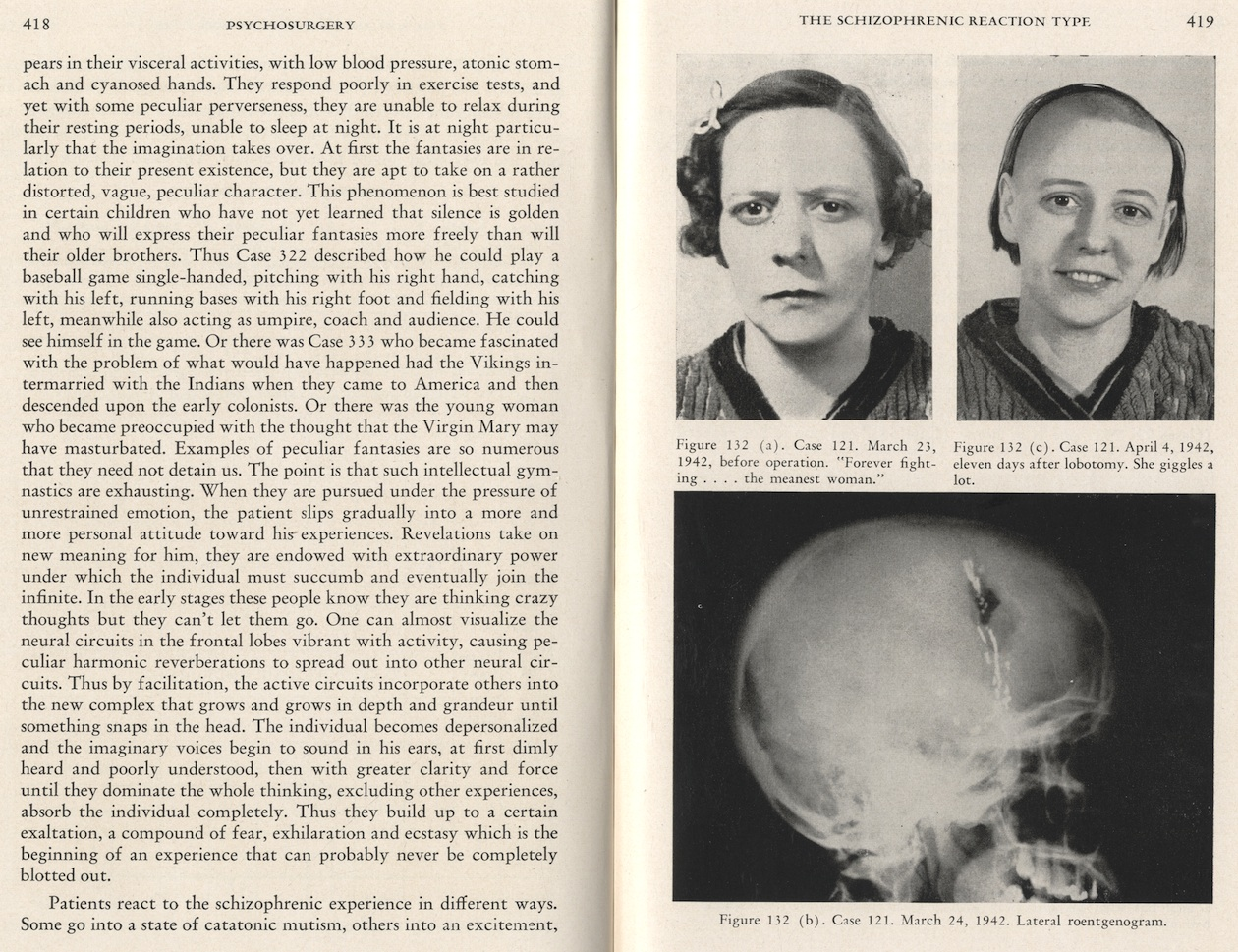 Lobotomy Before And After Brain | www.pixshark.com ...