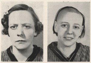 Before and after photographs of a woman who was lobotomized