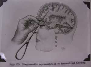 Image from the manuscript for Walter Freeman and James Watts' second edition of Psychosurgery (1950).