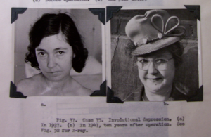 Manuscript page from Psychosurgery, showing before and after photographs of a lobotomized woman